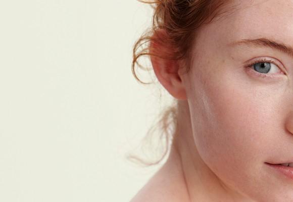 Pelle Grassa: rimedi naturali ed efficaci